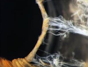inside-the-human-eye